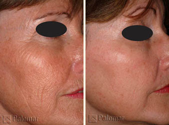 Фракционное лазерное омоложение кожи лица в Москве, цены и отзывы - неабляционное лазерное омоложение Palomar